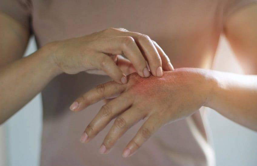 Close up of a woman's hand scratching her other hand which has a visible rash.