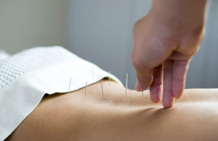A hand inserting acupuncture needles into a patient's back.