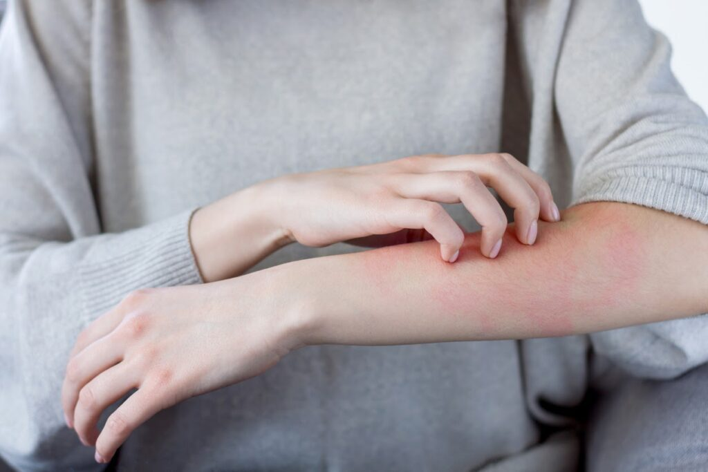 Woman scratching a rash on her arm.